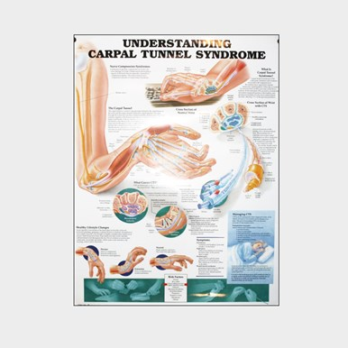 Wall chart - Carpal Tunnel Syndrome